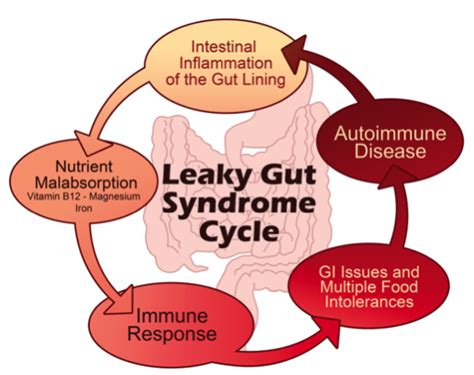 digestion symptoms picture 5