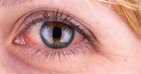 dry, red eyes, liver disease picture 6