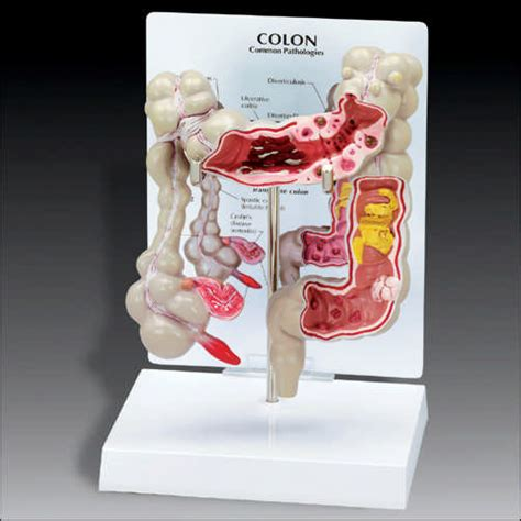 infection in the intestines or colon picture 9
