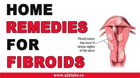 home ayurvedic remedies for fibroids picture 9