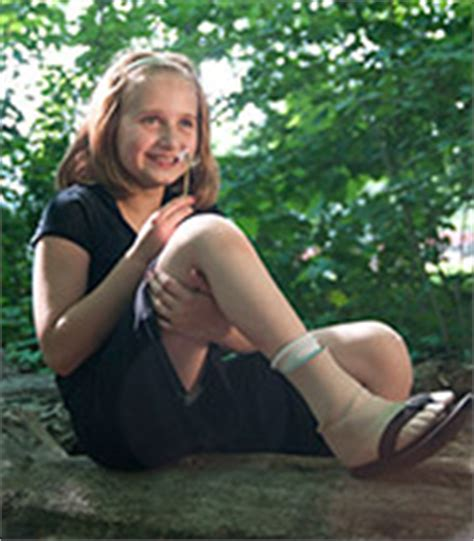 amputee women prosthetic leg picture 7