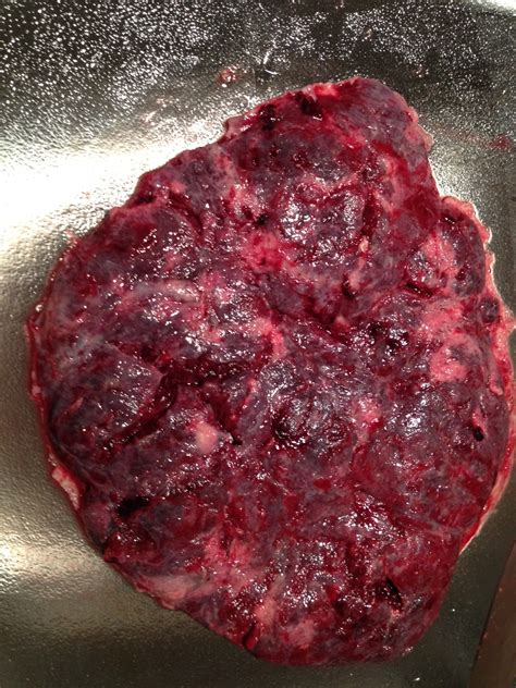 can stameta clean my uterus picture 19