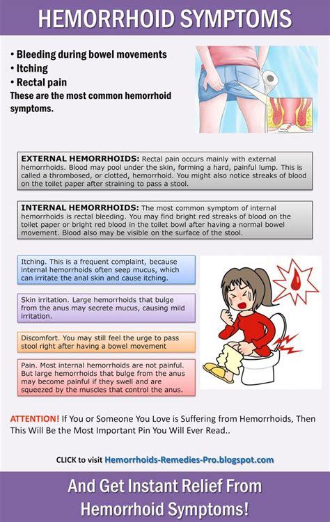 symptoms of hemorrhoids picture 11