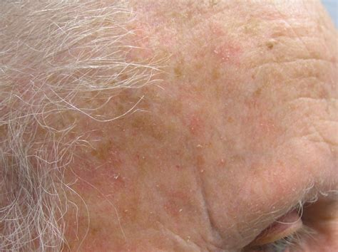 skin cancer attenant caratosis picture 1