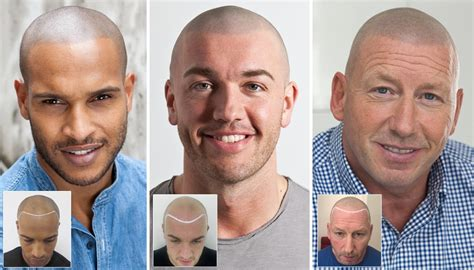 cost of hair transplants picture 19