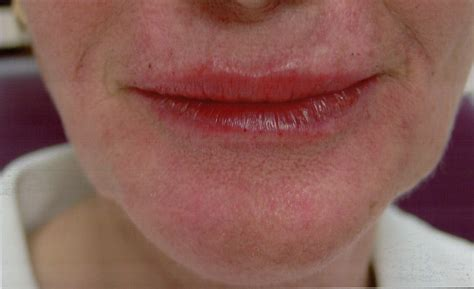 restylane for lips picture 3