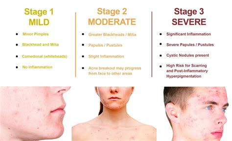 boston doctors that specialize in acne care picture 15