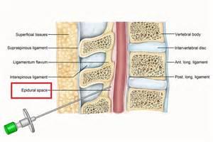 epidural shot loss of libido picture 1