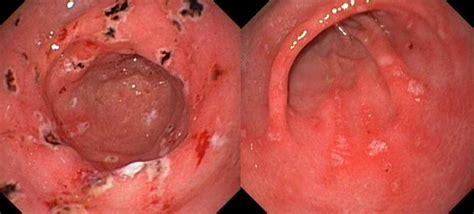 colon infection picture 1