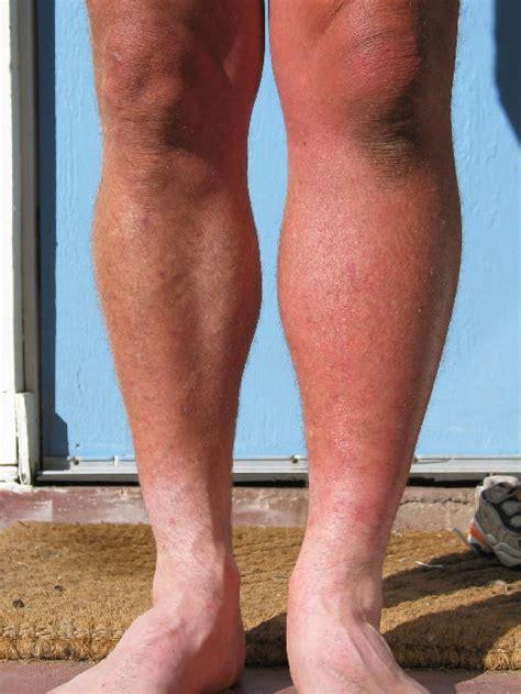 lump in left leg picture 1