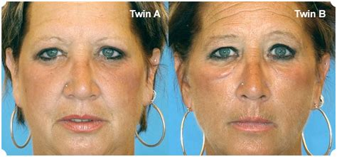 cigarette smoking affect on skin picture 19