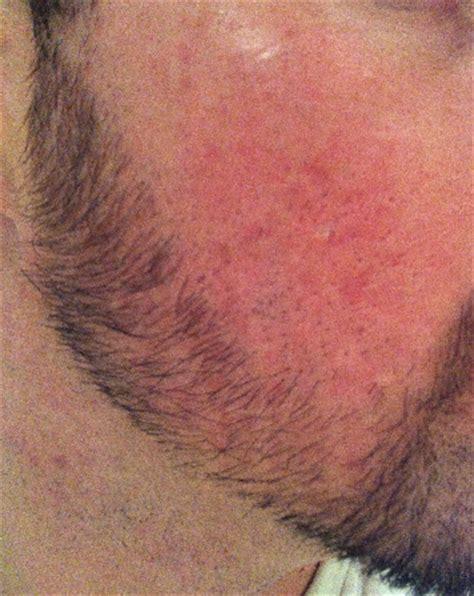 acne scars message board picture 10