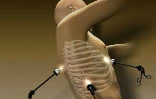 thymus gland picture 3