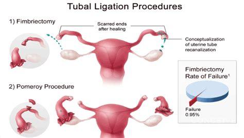 conceiveeasy ttc kit tubal ligation picture 5