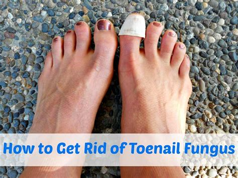 nail fungus remedy using tea tree oil picture 8