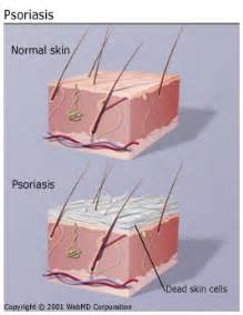 flaky skin pain picture 7