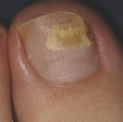 fungus under toe nails picture 6