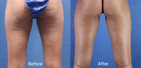 cellulite and laser insute picture 5