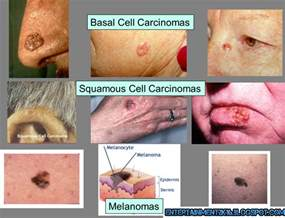 pictures of different types of skin cancers picture 6