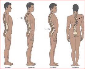 scoliosis back and neck stiffness bowel disorders picture 9