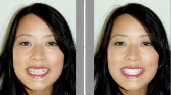 eyebrow threading teeth picture 7