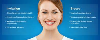 fort lauderdale teeth whitening picture 13