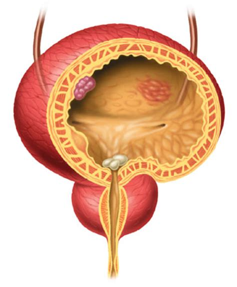 bladder disorders picture 2