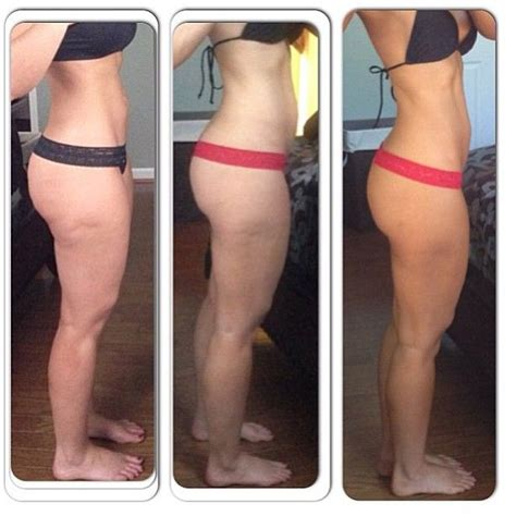 flabby legs after weight loss picture 1