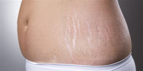 like my stretch marks picture 1