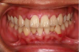 link between prostate cancer and gum swelling picture 2