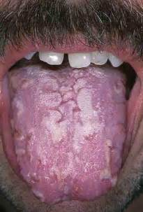 yeast infection of the mouth picture 2
