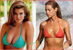 alabama breast augmentation picture 9