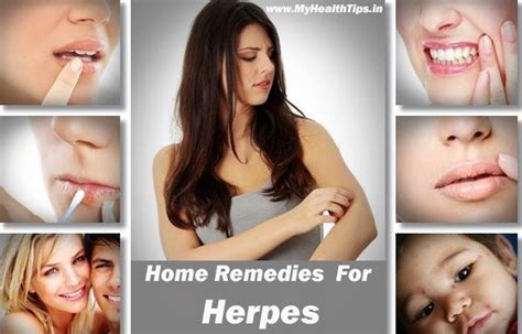 developing cure for herpes picture 10