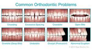 cuspid teeth picture 11
