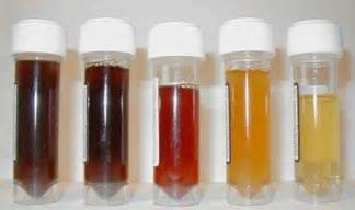 liver disease blood in urine picture 6