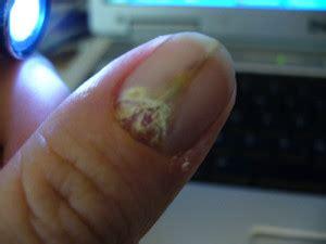 splitting toe nails picture 1