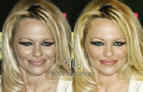 acne & m.s. picture 6