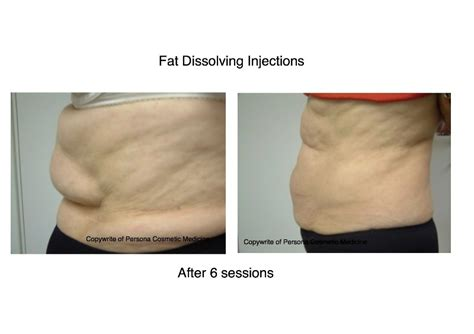 fat reduction injections gauteng picture 1