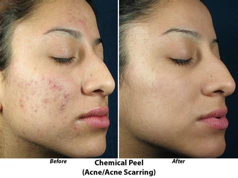obagi acne picture 3