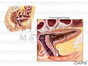 bladder fistula picture 13