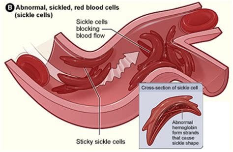 abnormal blood flow picture 8