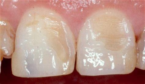 calcium loss in teeth picture 11