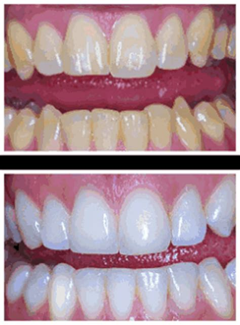 best whitening for teeth picture 3
