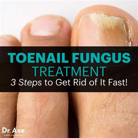 taoe nail fungus treatment picture 7