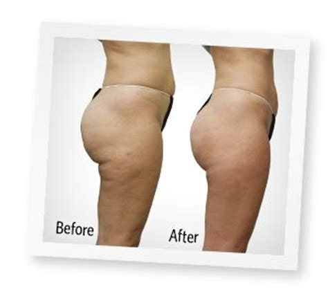 exercise cellulite picture 1