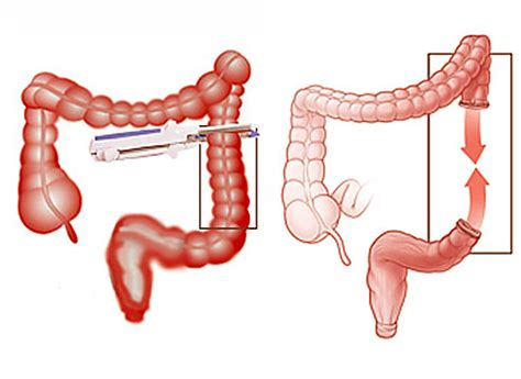 bowel resection picture 2