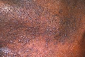 black rash skin problems from dogs picture 6