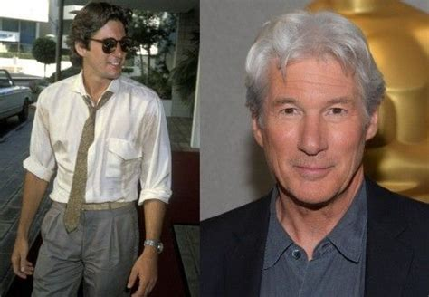 ard gere on plastic surgery picture 7