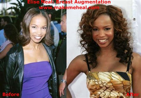 breast augmentation mage picture 9
