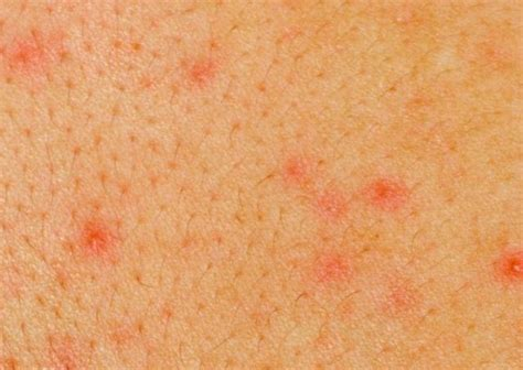aids skin rash picture 1